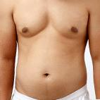 Erhöhter Körperfettanteil bei Männern